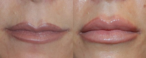 Lipofilling Labbra